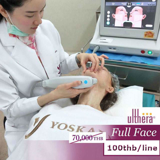 ultherapy thailand - Yoskarn Clinic - plastic surgery