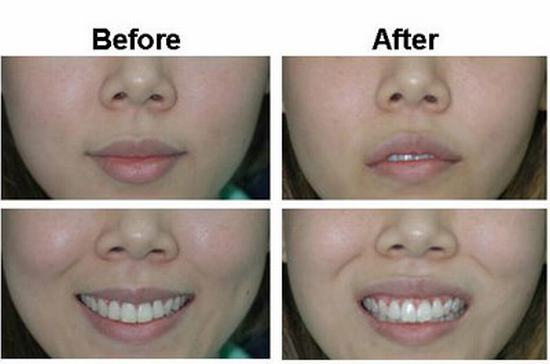 Buccal fat extraction - Plastic surgery Thailand,cosmetic
