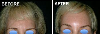Forehead lift endoscopic thread surgery bangkok thaila