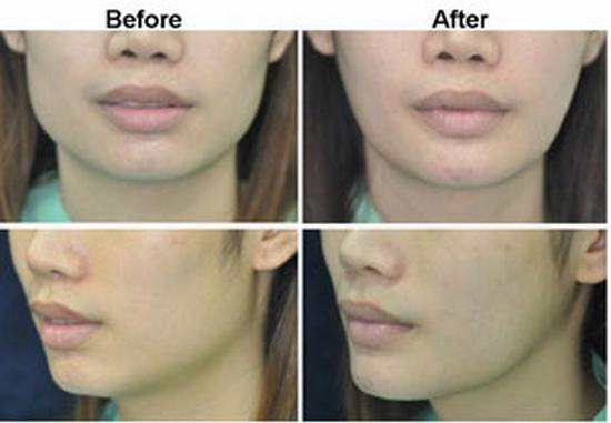 Jaw Reduction in Thailand, Best Plastic Surgeon in Bangkok