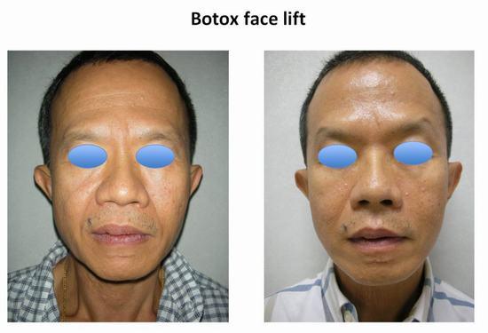 Facial cosmetic surgeon and botox