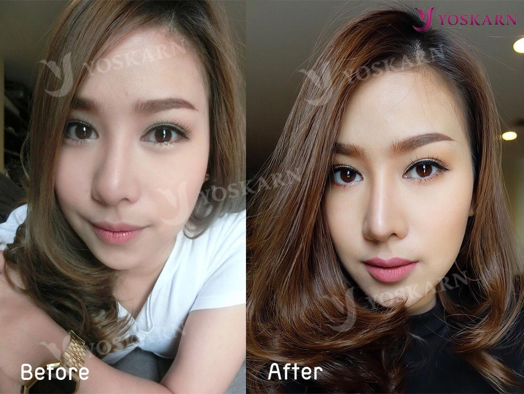 Nose Surgery Thailand Best Nose Surgeon In Thailand Yoskarn